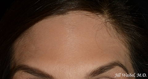 Botox Before And After Pictures In Miami Fl Miami Dermatology