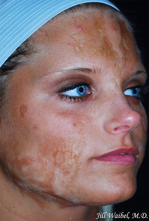 Burn Scars Before And After Pictures In Miami Fl Miami