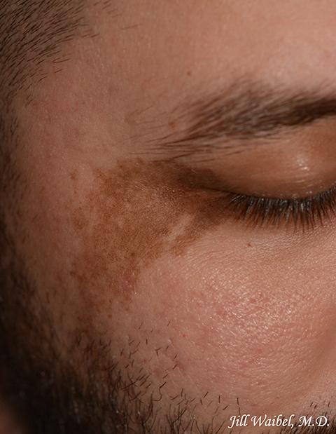 Birthmarks Before And After Pictures In Miami Fl Miami