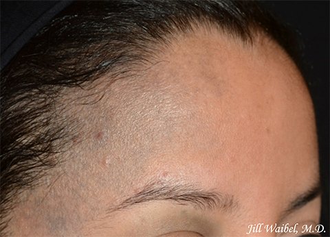 Nevus Of Ota Before And After Pictures In Miami Fl