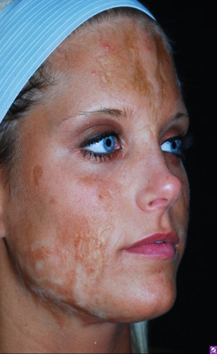 Burn Scars Miami Dermatology And Laser Institute