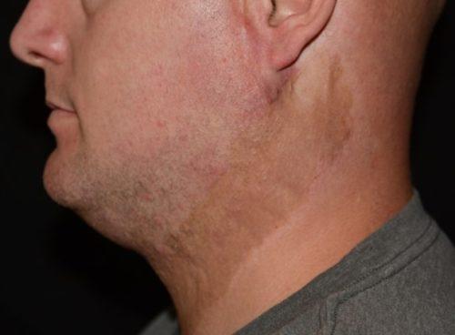 Burn Scars Miami Dermatology And Laser Institute