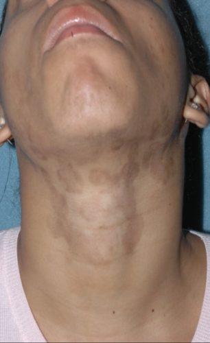 Post Inflammatory Hyperpigmentation Miami Dermatology