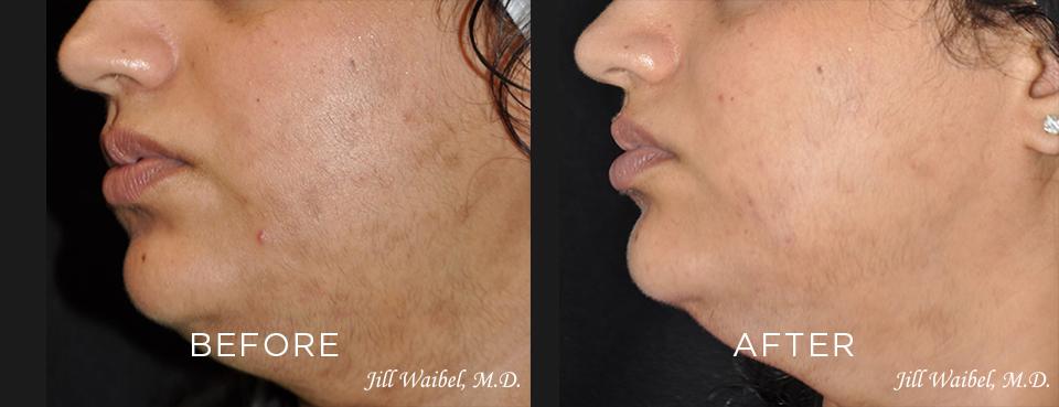 Post-Inflammatory-Hyperpigmentation-Pt.-1