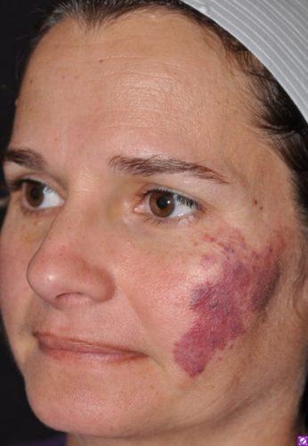 Port Wine Stain Miami Dermatology And Laser Institute