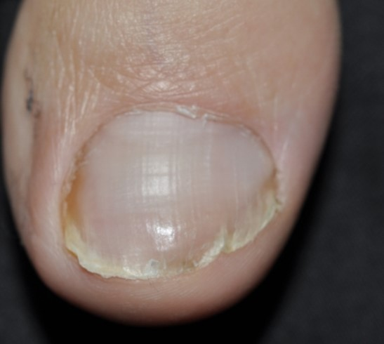Toe Nail Fungus Miami Dermatology And Laser Institute